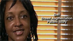 Dr. Sheila Bond Breast Augmentation Patient Testimonial
