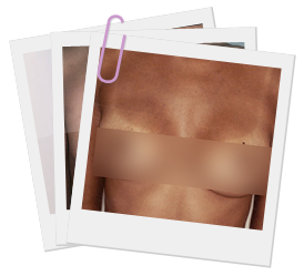 New Jersey Breast Augmentation Before and After Photo Gallery