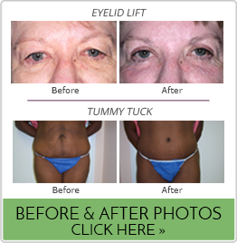 Bond Plastic Surgery Before & After Galleries