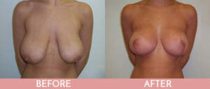 Breast Reduction Gallery