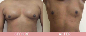 Gynecomastia Correction (Male Breast Reduction) Gallery